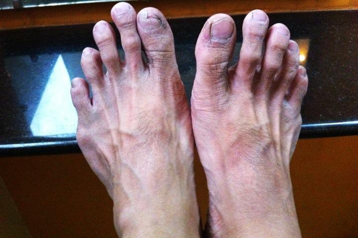 dirty feet, bangalore